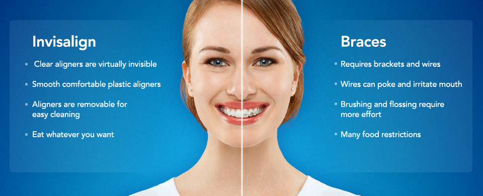 Invisalign for Teens or Braces – What You Need to Know #InvisalignTalk #ad